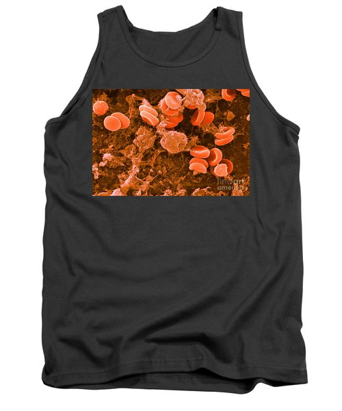 Red Blood Cells, Rouleaux Formation, Sem Tank Top