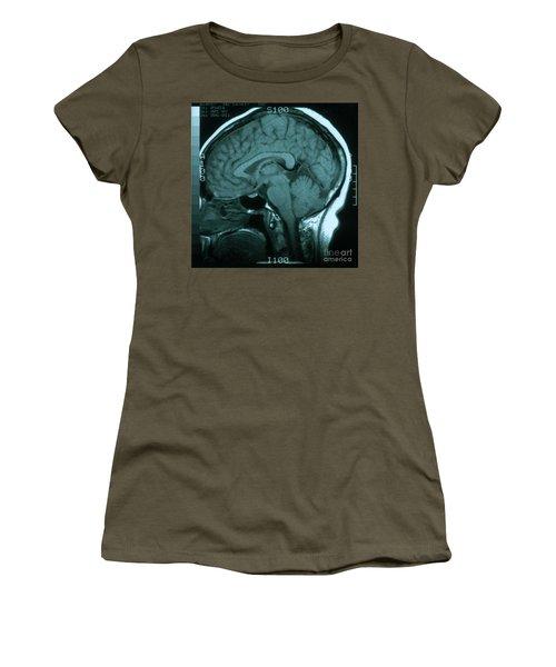 Mri Of Normal Brain Women's T-Shirt