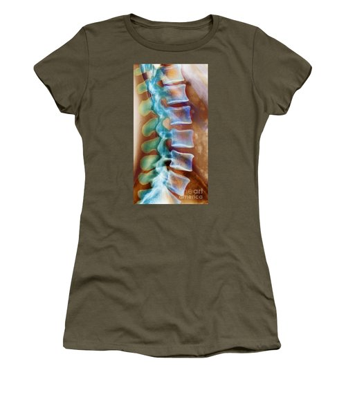 Healthy Lower Spine X-ray Women's T-Shirt (Junior Cut) by SPL and Photo Researchers