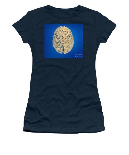 Superior View Of Brain Women's T-Shirt