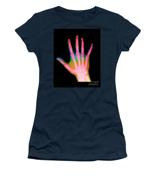 X-ray Of A Hand Women's T-Shirt
