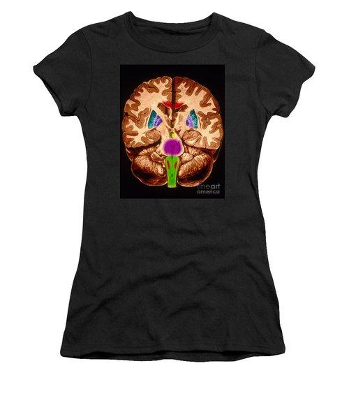 Brain, Coronal Section Women's T-Shirt