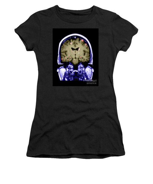 Brain Metastasis From Breast Cancer Women's T-Shirt