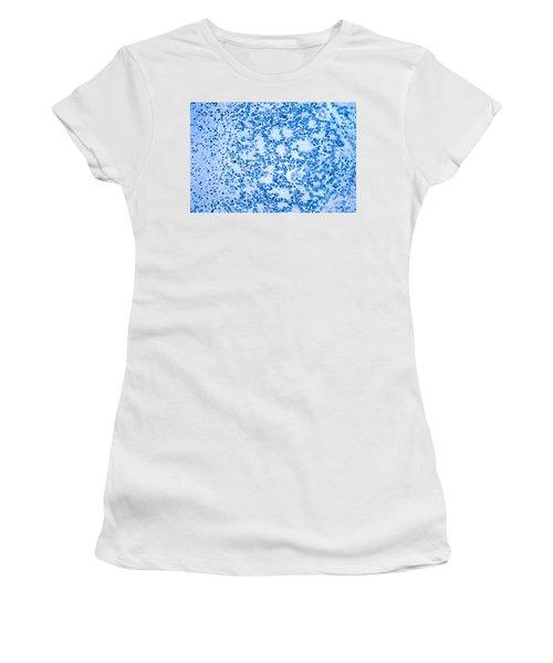 Neuroblastoma Women's T-Shirt