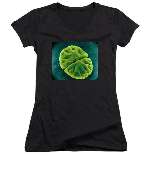 Women's V-Neck T-Shirt (Junior Cut) featuring the photograph Micrasterias Angulosa, Algae, Sem by Science Source
