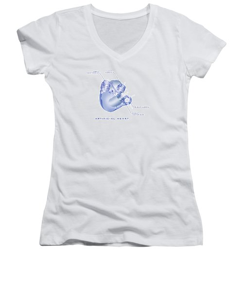 Artificial Heart Women's V-Neck T-Shirt