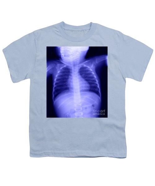 Swallowed Nail Youth T-Shirt