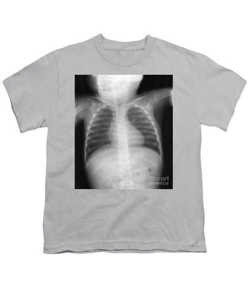 Swallowed Nail Youth T-Shirt by Ted Kinsman
