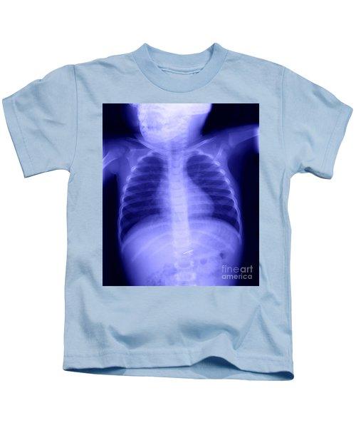 Swallowed Nail Kids T-Shirt by Ted Kinsman