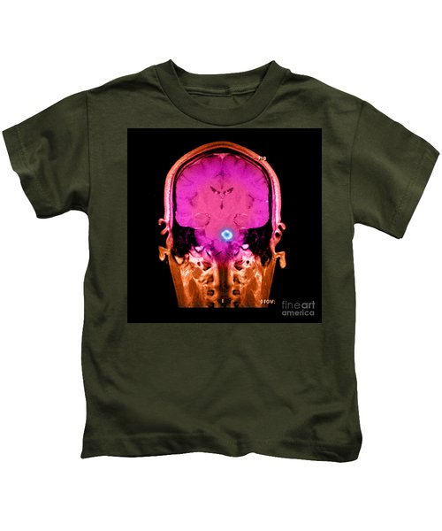 Mri Of Acute Ms Kids T-Shirt