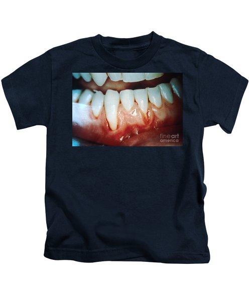 Chewing Tobacco Damage Kids T-Shirt