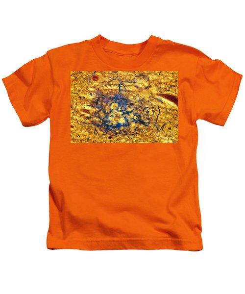 Alzheimers Disease Kids T-Shirt
