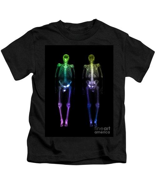 Acetabular Fracture, Bone Scan Kids T-Shirt