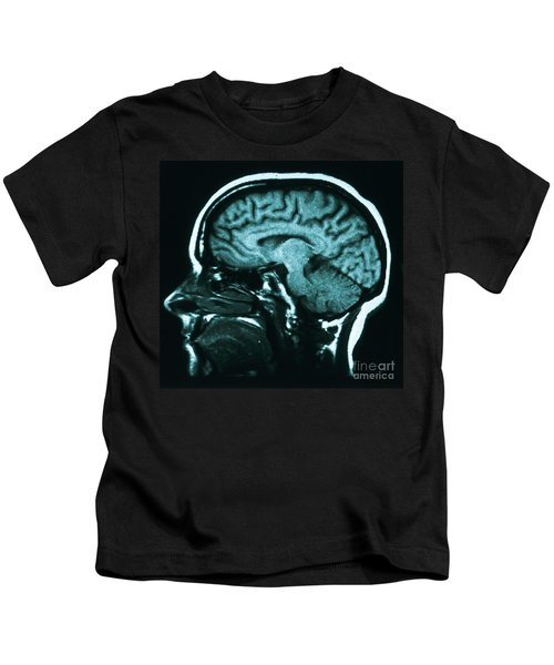 Mri Of Normal Brain Kids T-Shirt