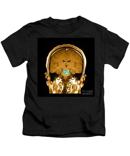 Mri Brainstem Cavernous Malformations Kids T-Shirt