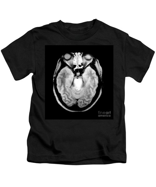 Mri Of Brainstem Glioma Kids T-Shirt