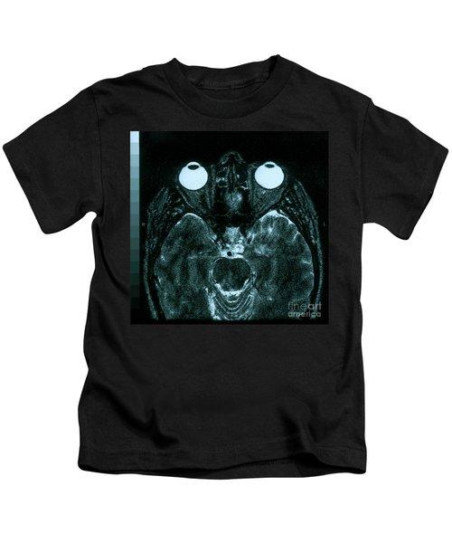 Mri Of Normal Brain Kids T-Shirt