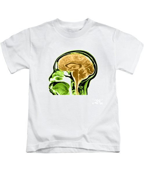 Sagittal View Of An Mri Of The Brain Kids T-Shirt