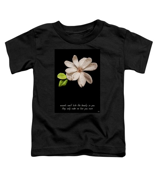Wounds Cannot Hide The Beauty In You Toddler T-Shirt