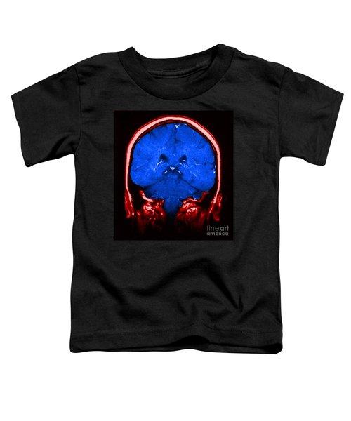 Mri Of Normal Brain Toddler T-Shirt