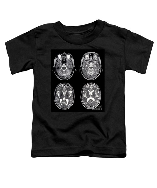 Normal Brain Of 65 Year Old Woman, Mri Toddler T-Shirt