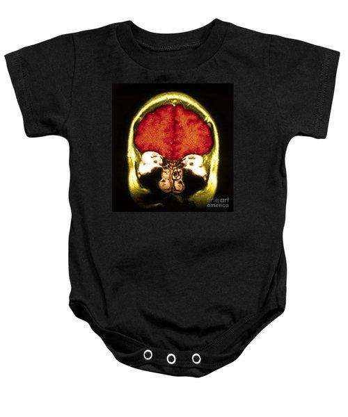 Mri Of Normal Brain Baby Onesie