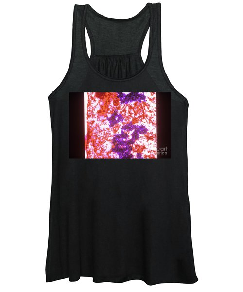 Foot And Mouth Disease Women's Tank Top