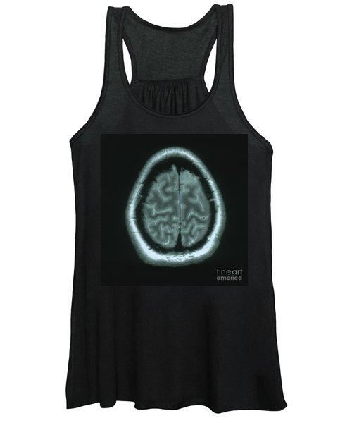 Mri Of Normal Brain Women's Tank Top