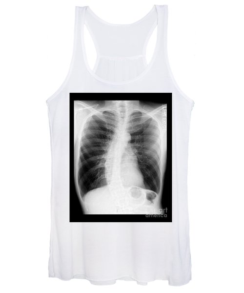 Chest X-ray - Copd And Scoliosis Women's Tank Top