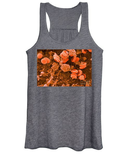 Red Blood Cells, Rouleaux Formation, Sem Women's Tank Top