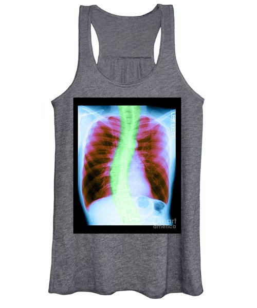 X-ray Of Copd And Scoliosis Women's Tank Top