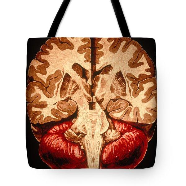 Brain, Coronal Section Tote Bag