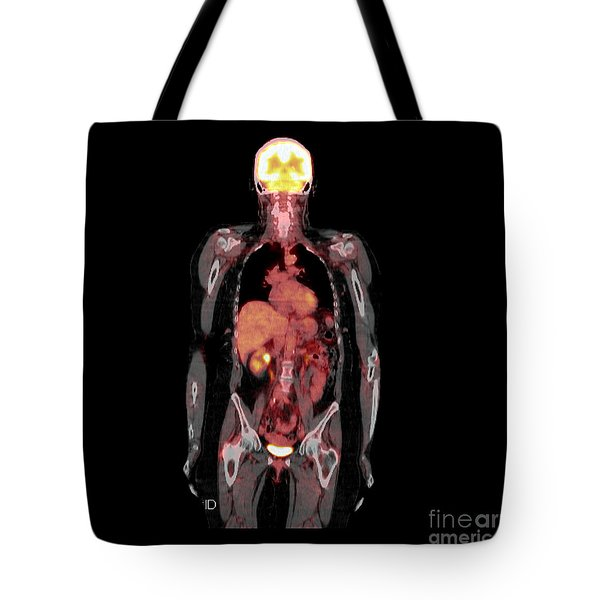 Petct Scan Of An Adult Female Tote Bag