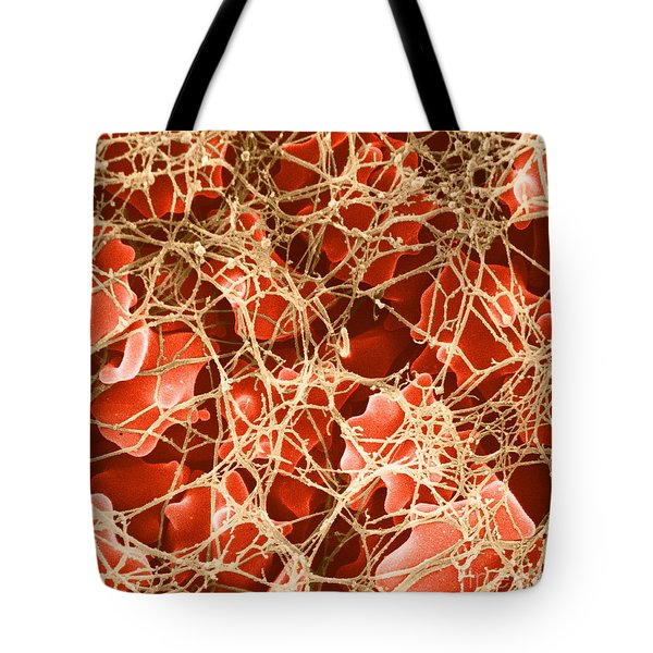 Blood Clot Sem, 2 Of 3 Tote Bag by David M. Phillips