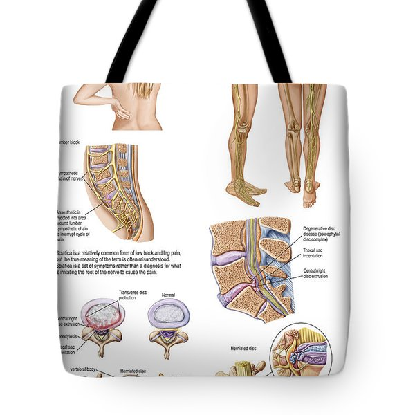 Medical Chart Showing The Signs Tote Bag