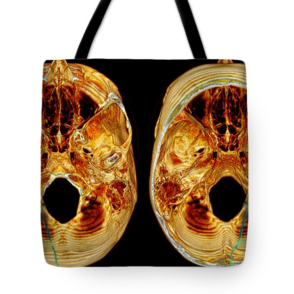 3d Ct Reconstruction Of Skull Fracture Tote Bag by Scott Camazine
