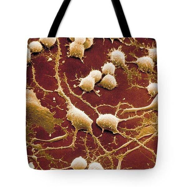Dendrites Tote Bag