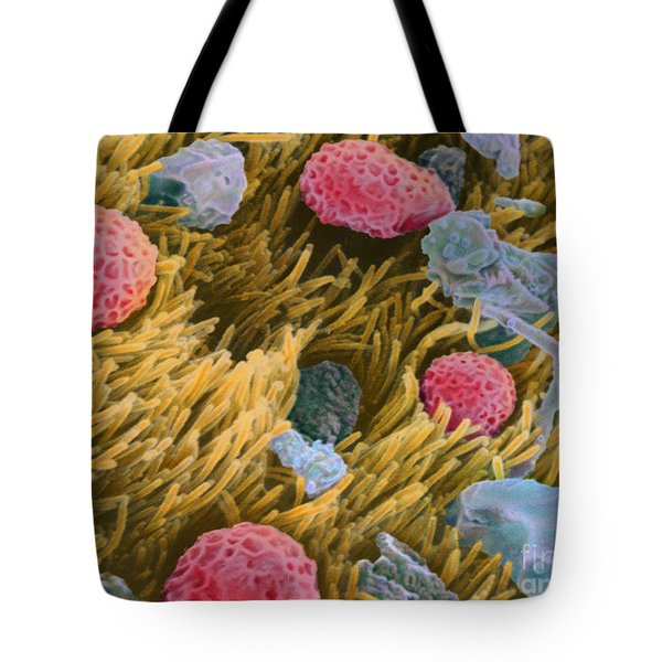 Allergens On Surface Of Trachea Tote Bag by Spl