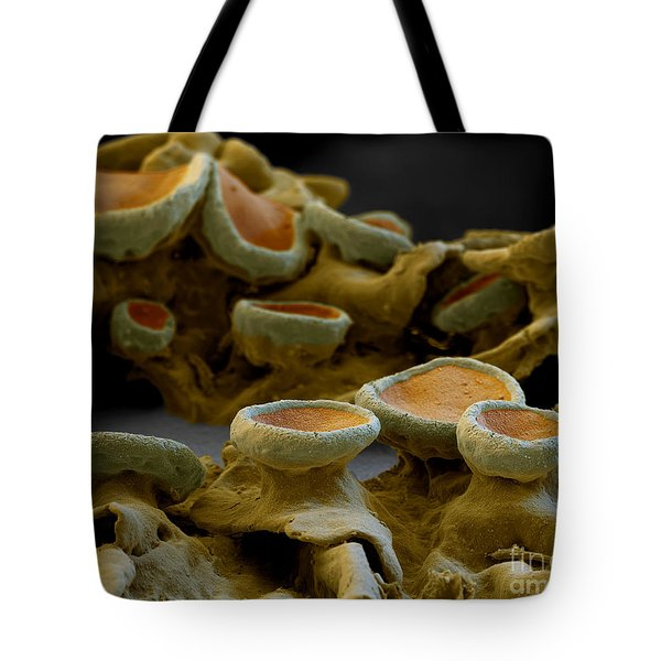 Common Orange Lichen Tote Bag by Eye of Science