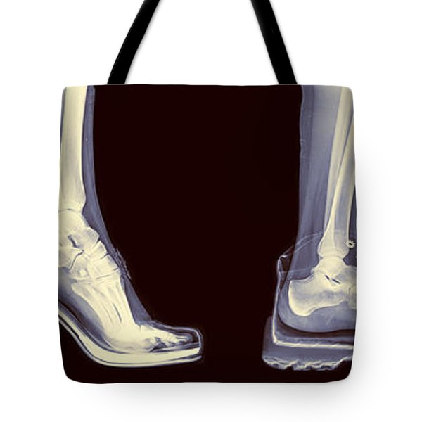 Different Shoes X-ray  Tote Bag