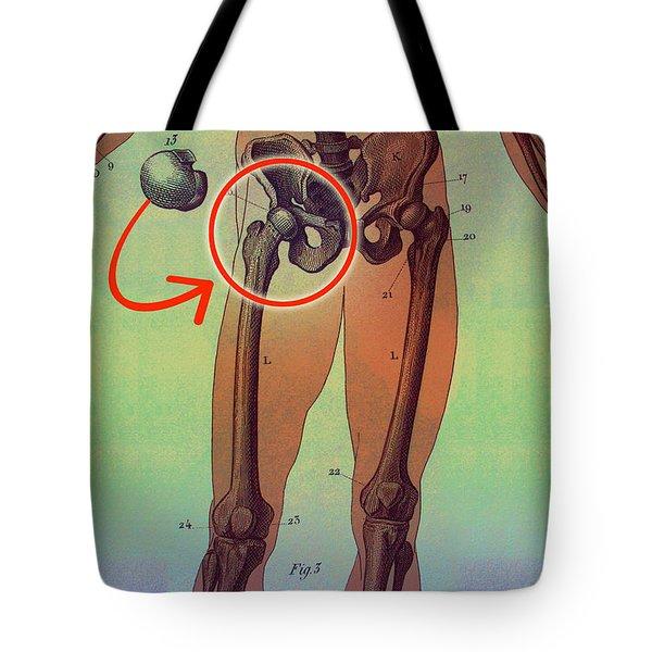 Hip Replacement Tote Bag by Dennis D Potokar