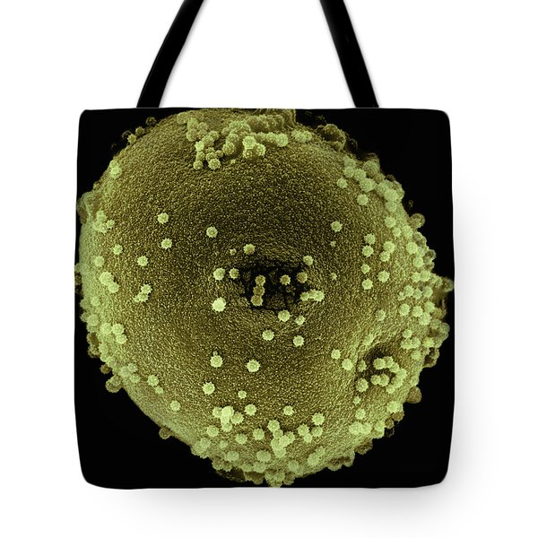 Italian Cypress Pollen Sem 2800x Tote Bag by Albert Lleal
