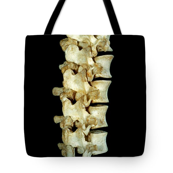 Lumbar Vertebrae Tote Bag by VideoSurgery