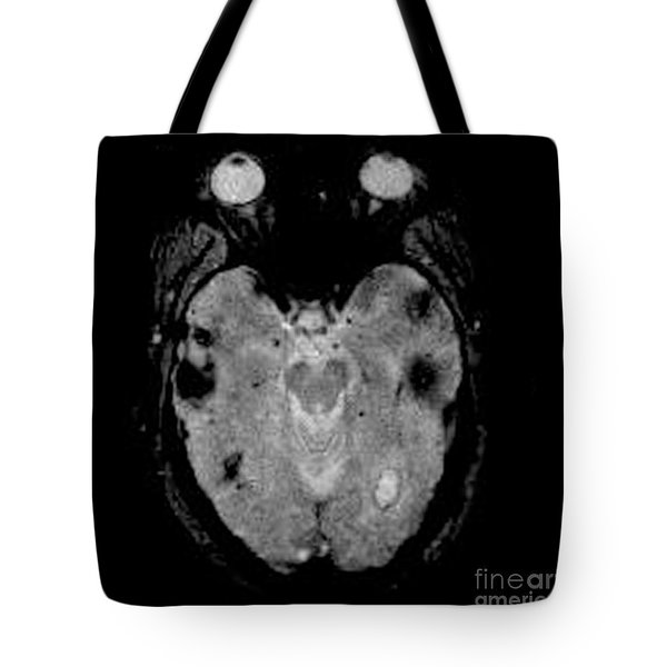 Mri Of Amyloid Angiopathy Tote Bag by Living Art Enterprises