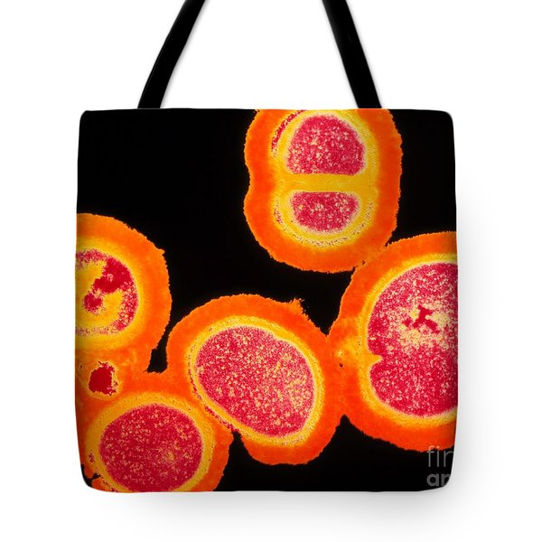 Mrsa Tote Bag by Spl
