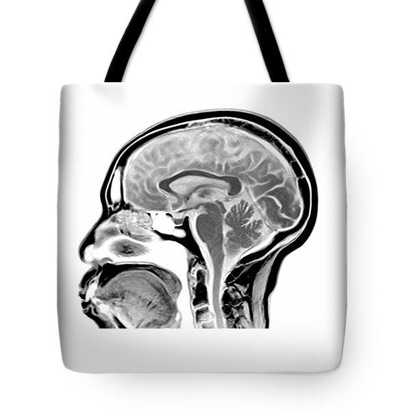 Sagittal Mri Of The Brain Tote Bag