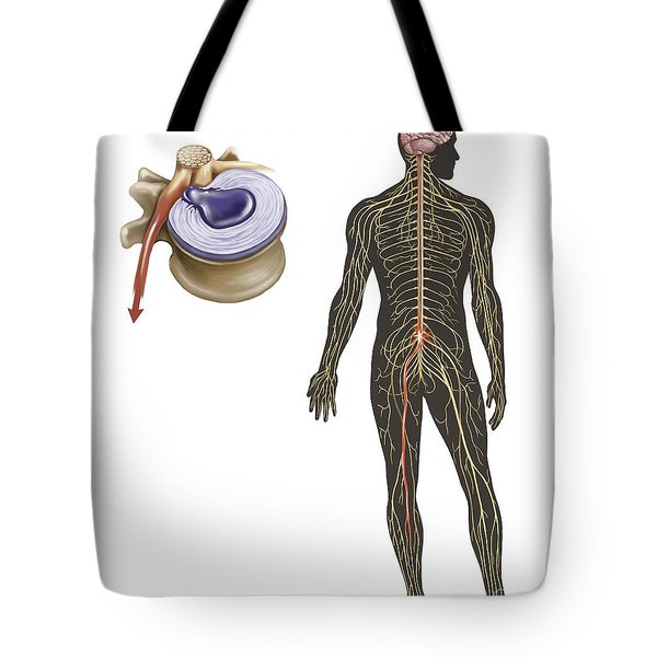 Sciatica Caused From Herniated Disc Tote Bag
