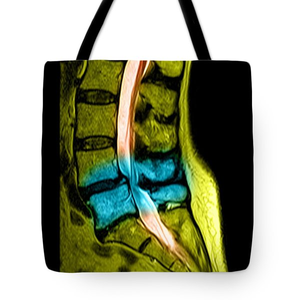 Spondylolisthesis And Canal Stenosis Tote Bag