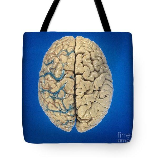 Superior View Of Brain Tote Bag