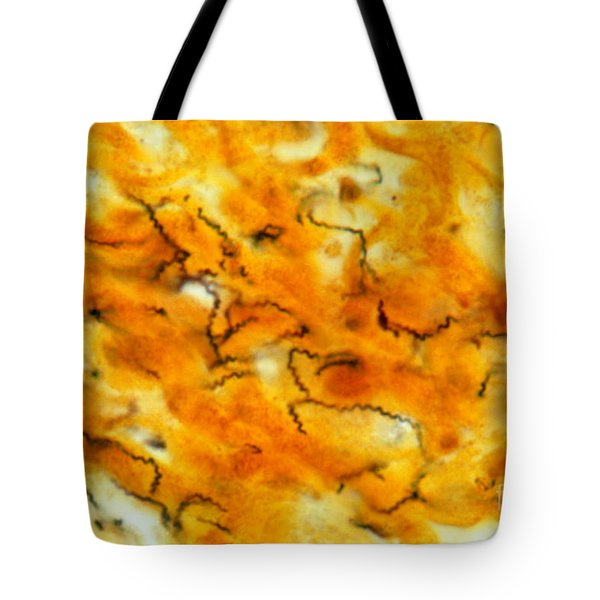 Treponema Pallidum Lm Tote Bag by Michael Abbey